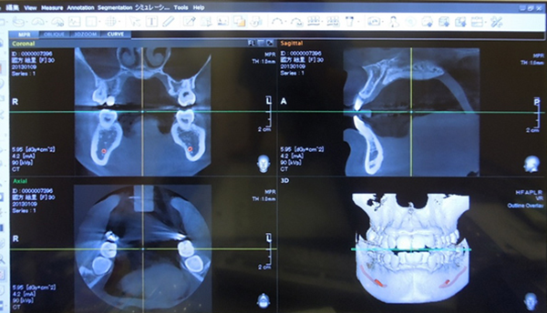 歯科用CT診断装置の現像画面
